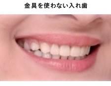 金属を使わない入れ歯